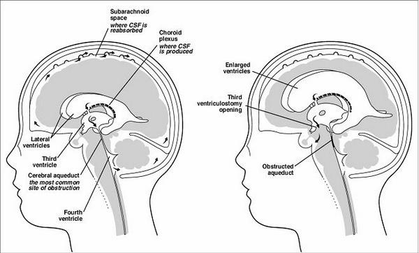 Neuroanatomy Images for your Step 1!-csfflow.jpg
