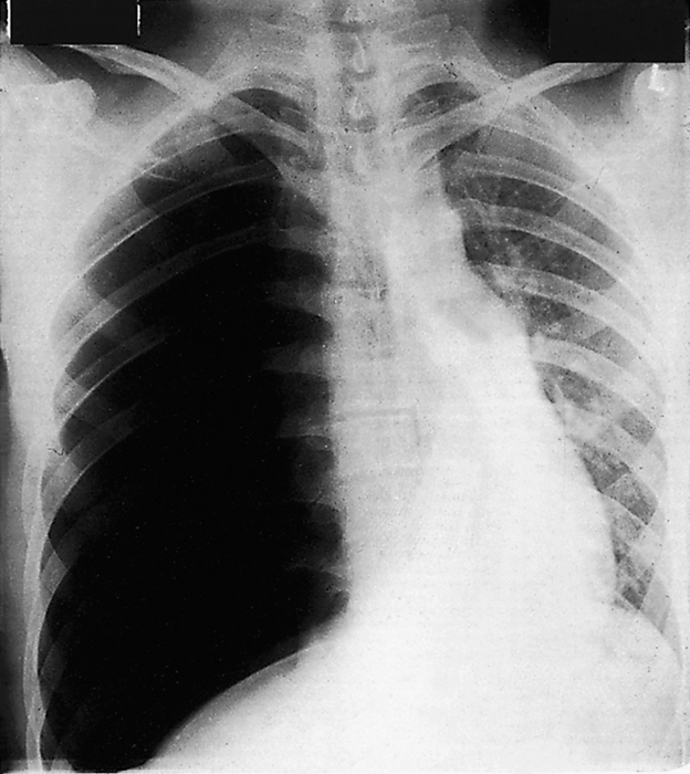 Car accident and a chest X ray, the type of shock!-cxr002.jpg
