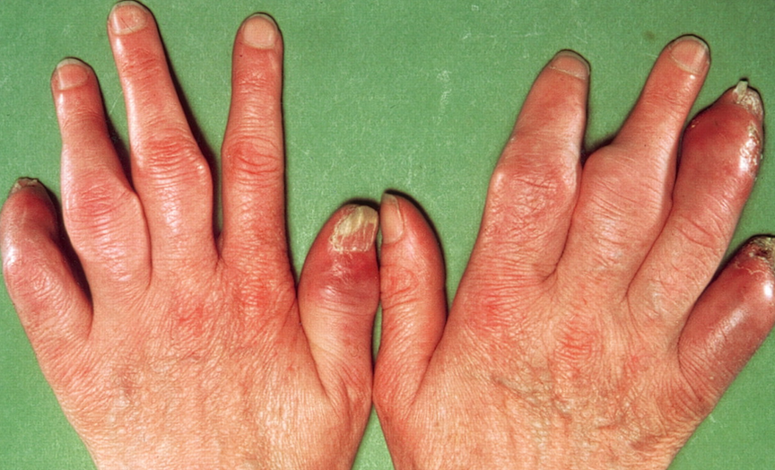 Dermatology Pictures for the CK Exam-dactylitis-5.png