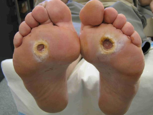 Dermatology Pictures for the CK Exam-diabetic-foot-care.jpg