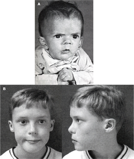 High yield images of typical Facies in dysmorphic children-digeorge_pt_infant_adolesc.jpg