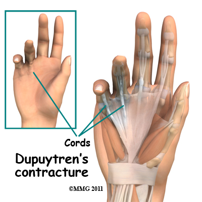 Dermatology Pictures for the CK Exam-dupuytrens_contracture_cord.jpg