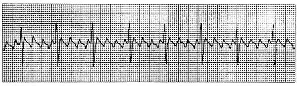 Diagnose this ECG Strip-ecgstrip.jpg