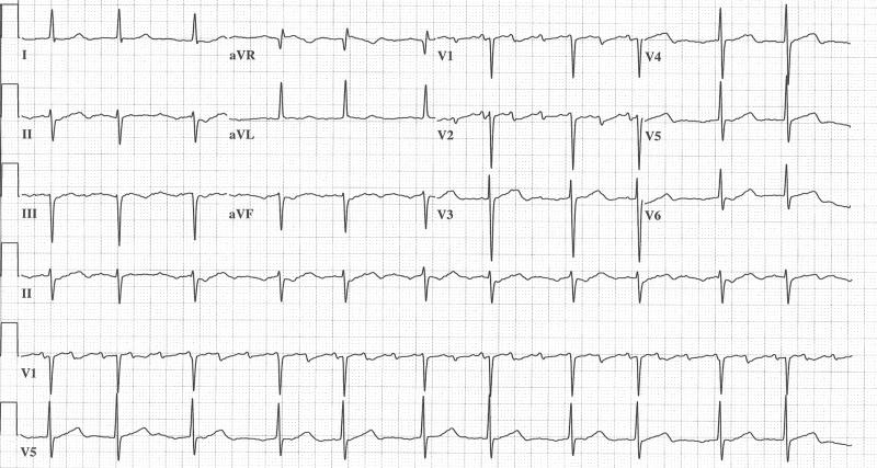 Which Atrial Tachycardia is this?-ekg-001.jpg
