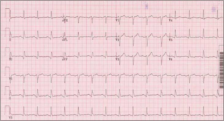 EKG of Chest Pain that radiates to back!-ekg-image.jpg