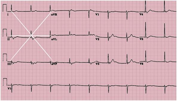 EKG perpendicular axes Mnemonic-ekg.jpg