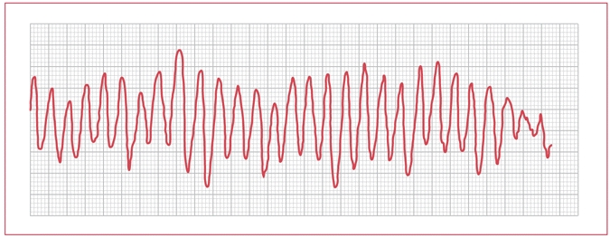 EKG Abnormality Diagnosis-ekg.jpg