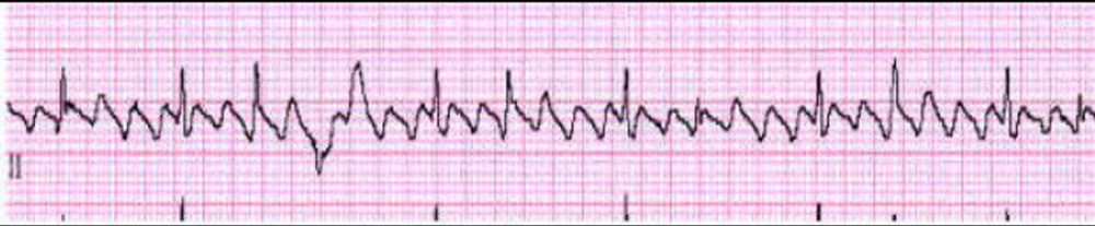 Can you diagnose this EKG!-ekg001.png