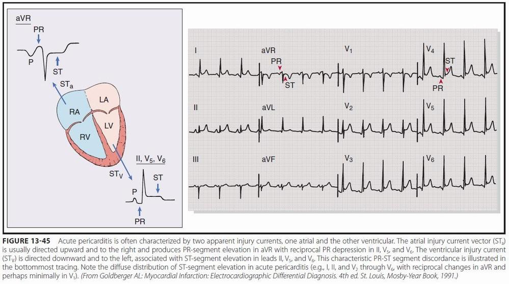 Some electrocardiographic findings...-ekg_acpericarditis.jpg