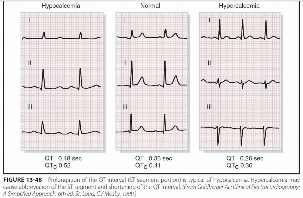 Some electrocardiographic findings...-ekg_calcio.jpg