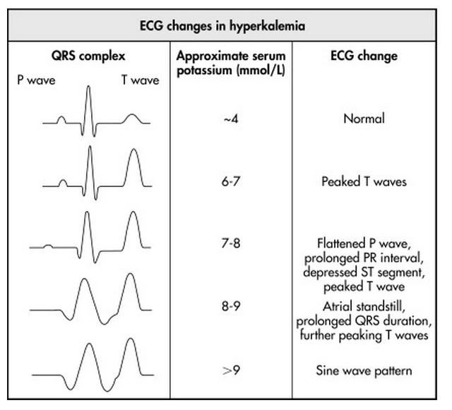Some electrocardiographic findings...-ekg_hyperk.jpg