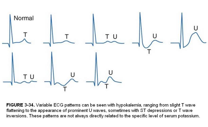 Some electrocardiographic findings...-ekg_hypok.jpg