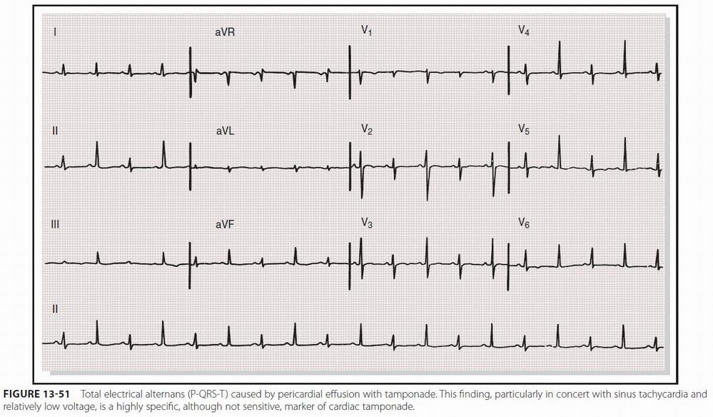 Some electrocardiographic findings...-ekg_tamponade.jpg