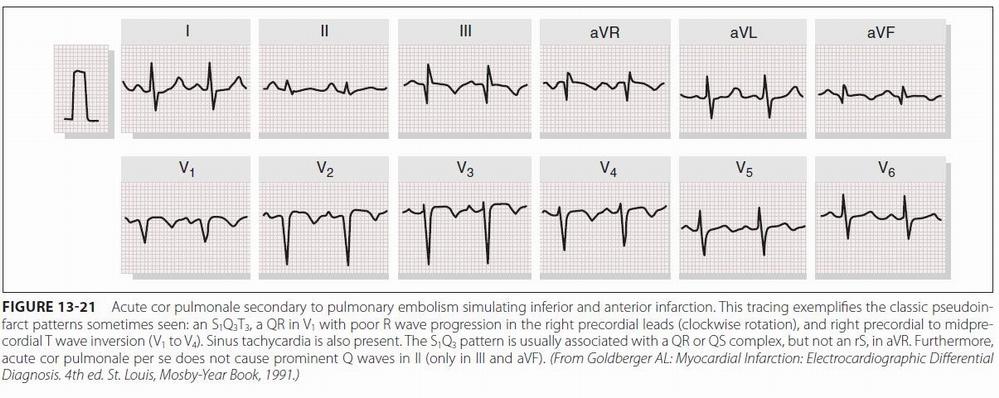 Some electrocardiographic findings...-ekg_tep.jpg