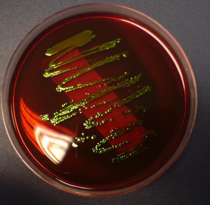 High Yield Microbiology Growth Media/Agars for USMLE Step 1-emb2.jpg