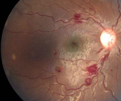 Abnormal fundal examination of the eye-eye-fundus.jpg