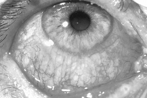 Ophthalmology Question-eye-pic-1.jpg