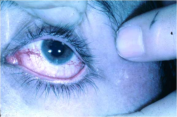 Spider veins and this eye picture-eye-picture.jpg