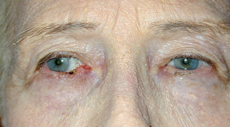 A nodule on the lower eyelid!-eyes.jpg