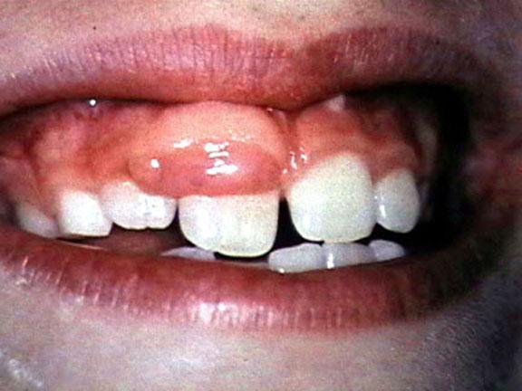 Tumors of oral mucosa-f-3.jpg