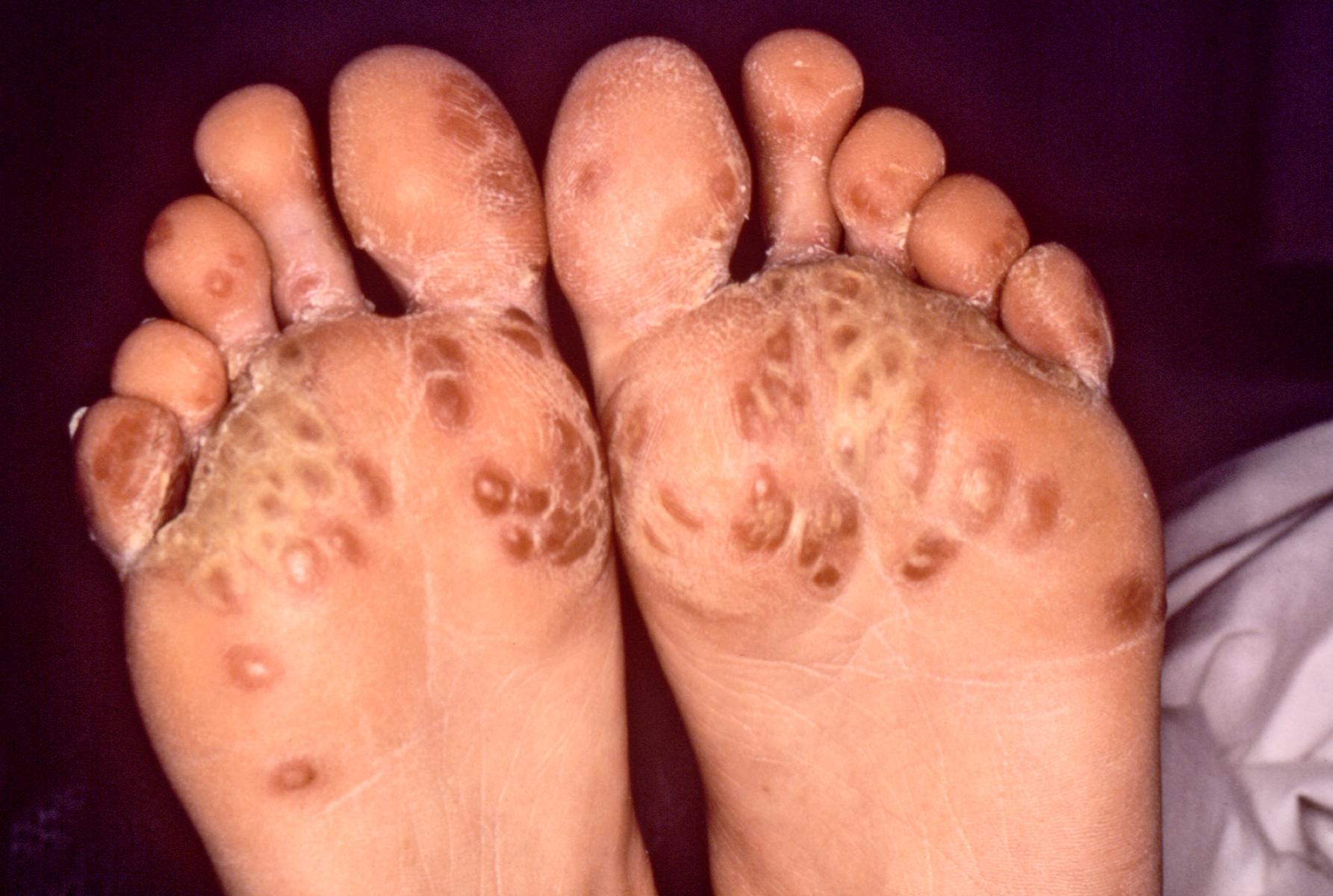 Male with sole rash-feet-rash.jpg