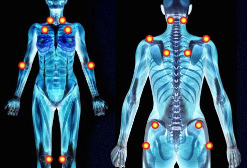 Demonstration of 11 Tender Points!-fibromyalgia.jpg