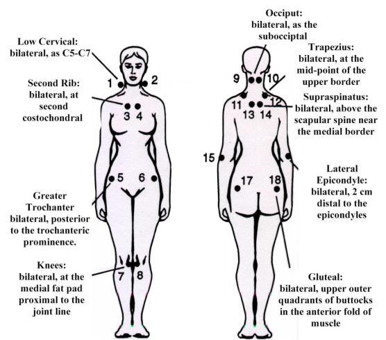 Dermatology Pictures for the CK Exam-fibromyalgia_ezr-1-.jpg