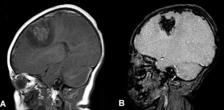 Intracranial hemorrhages-fig5.jpg