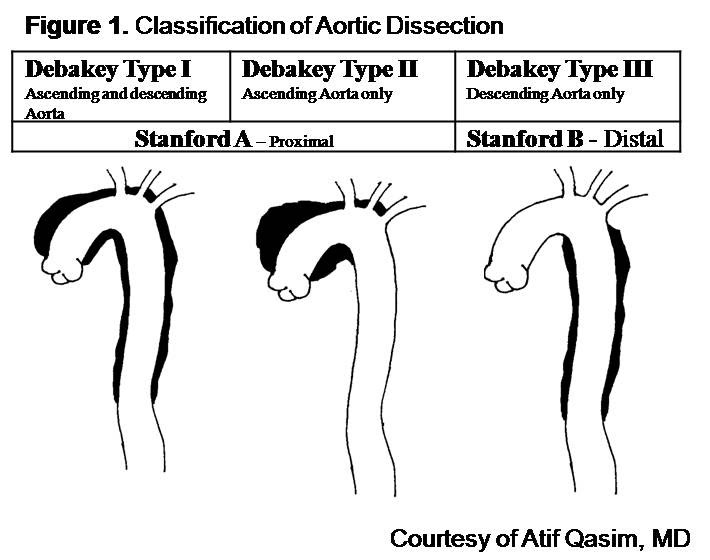Aortic Dissection is due to defect in which of these?-figure-1.jpg