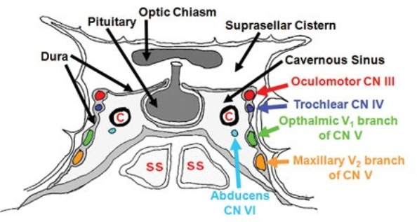 Which cranial nerve affected first by Pituitary tumor expansion!-figure31.jpg