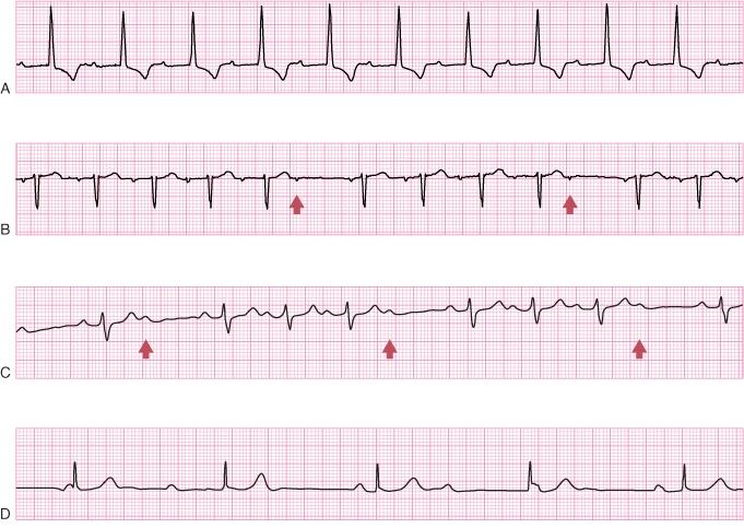 High Yield Electrocardiographs for the Step 2 CK Exam-first-degree-av-block-ecg.jpg