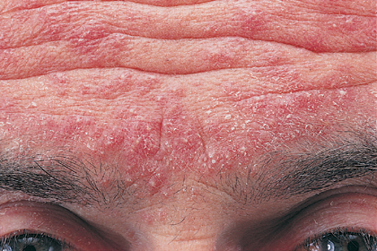 Cool  Dermatology cases-forehead.jpg