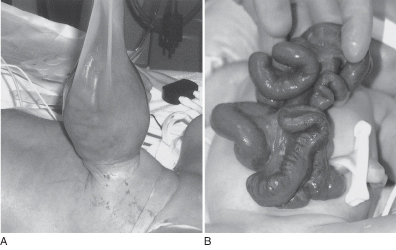 High Yield Images for Step 2 CK-gastroschisis.jpg