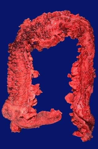 Step 1 X-Rays, CTs, MRIs & Histo slides-gi071.jpg