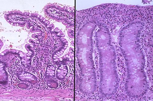 Step 1 X-Rays, CTs, MRIs & Histo slides-gi152.jpg