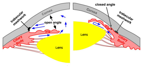 Closed angle glaucoma; Iris and Lens or Iris and Cornea!-glaucoma-angle.jpg