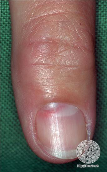 Pregnant woman with lesion on her finger-glomus.jpg