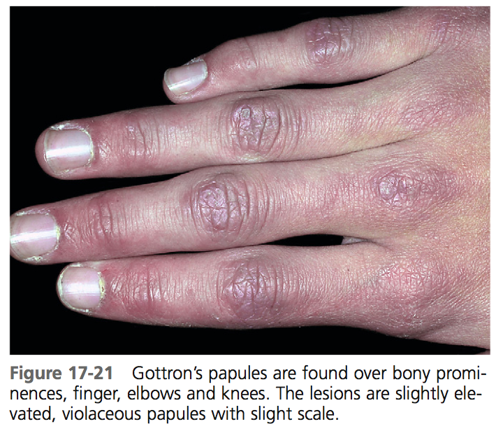 The hand in different diseases-gottrons1.png