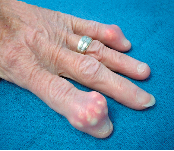 The hand in different diseases-gout.png