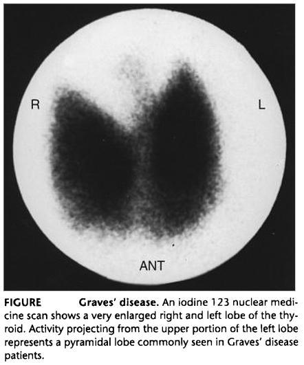 Hyperthyroidism in Pictures-graves3_raiu.jpg