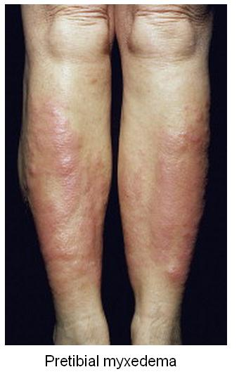 Hyperthyroidism in Pictures-graves4_pretibial_myxedema.jpg