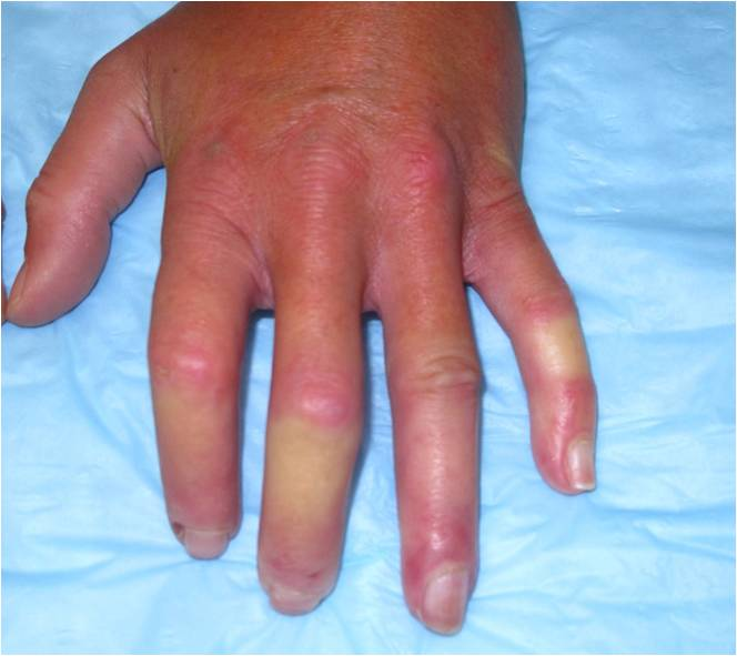 Cold Hands and Electrolyte Abnormality!-hand-image.jpg