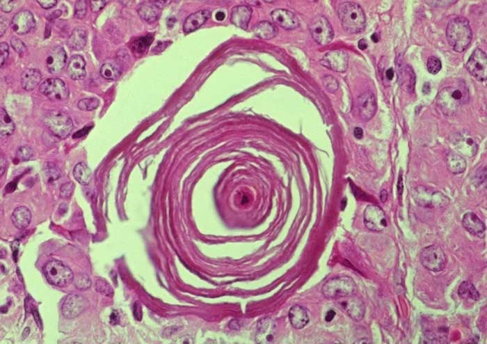 The Diagnosis of this Histology Slide-histology-image.jpg