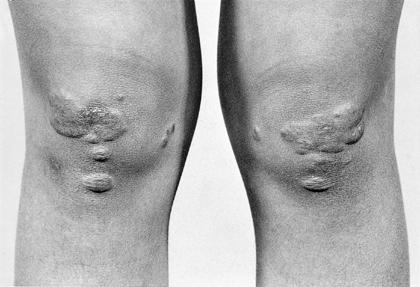 Dermatology Pictures for the CK Exam-homozygous-familial-hypercholesterolemia.-planar-xanthomas-seen-knees.jpg