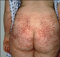 What is the most likely diagnosis?-hsp-image2.jpg