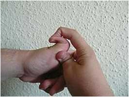 Autosomal dominant collagen disorder and heart lesion-hyperextensible_thumb.jpg