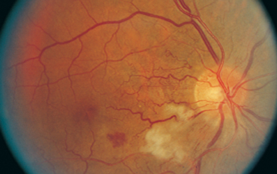 High Yield Images for Step 2 CK-hypertensive-retinopathy.jpg