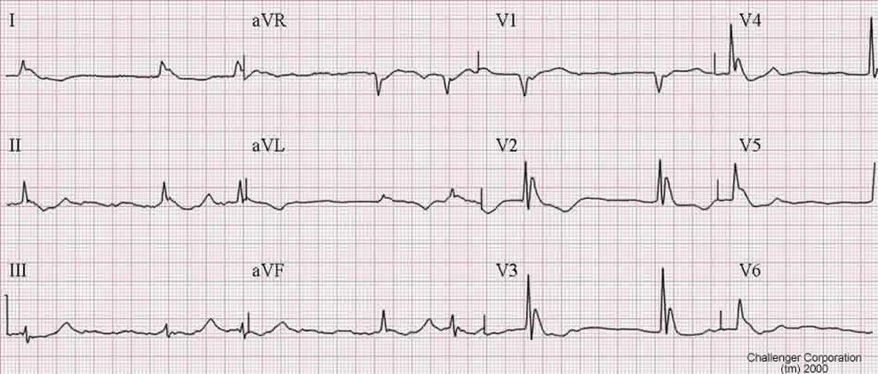 Delta and Osbourn Waves in the EKG-hypothermiaecg.jpg