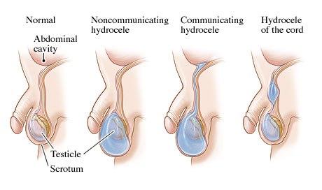 Infant Scrotal Enlargement pathophysiology and embryology-ighern.jpg