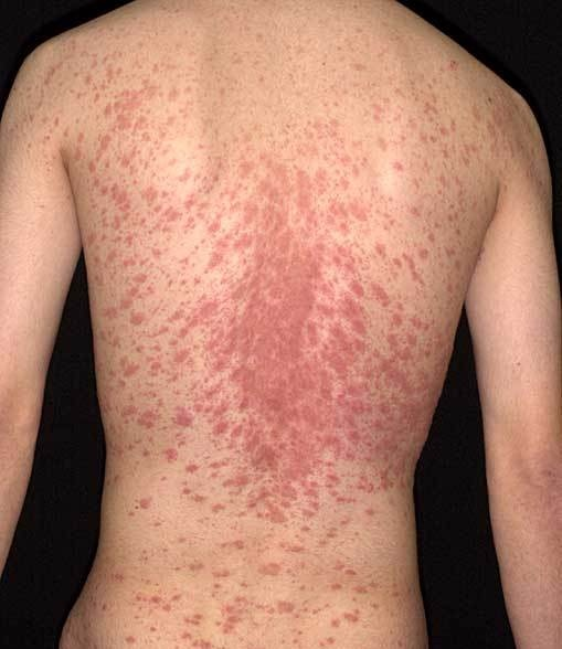 Dermatology Pictures for the CK Exam-image.jpg